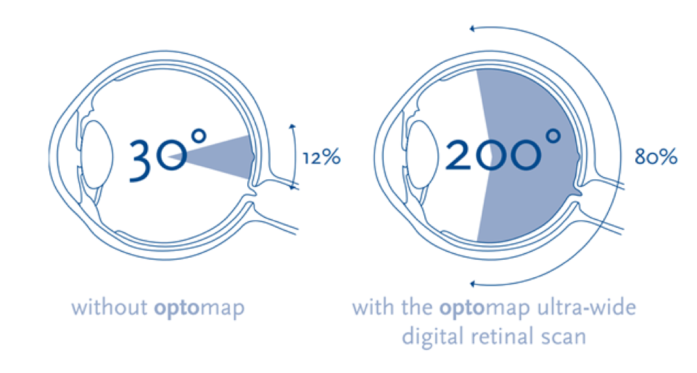 Optomap Infographic